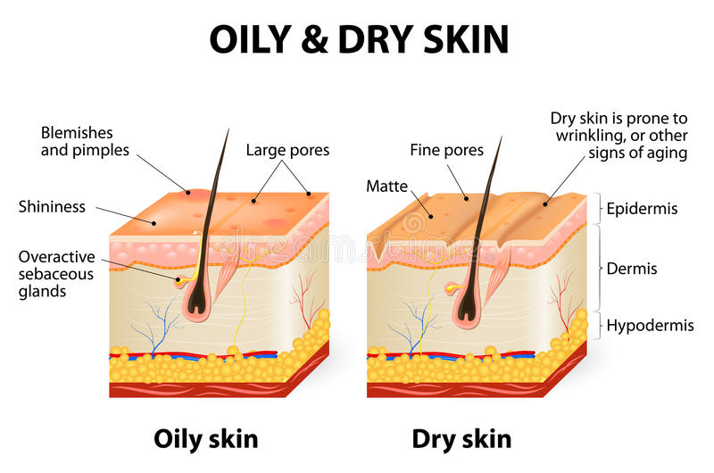Oily & dry skin. Different. Human Skin types and conditions. A diagrammatic sectional view of the skin stock illustration