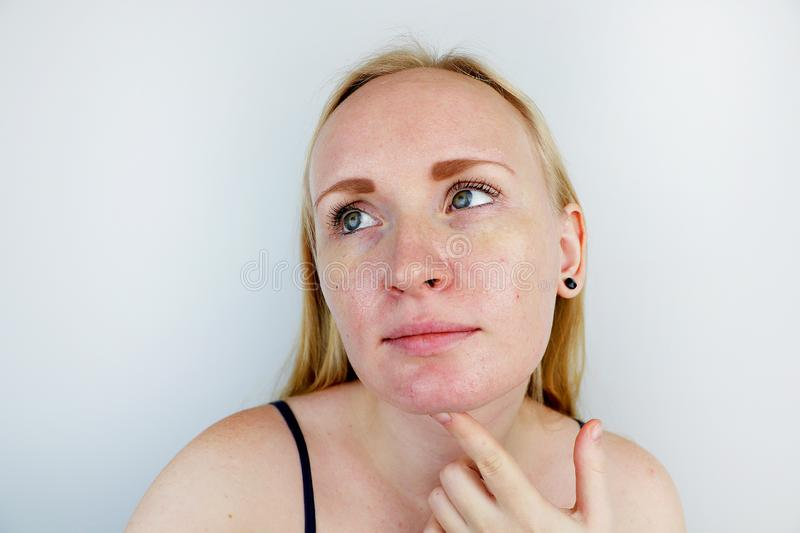 Oily and problem skin. Portrait of a blonde girl with acne, oily skin and pigmentation stock images
