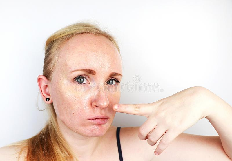 Oily and problem skin. Portrait of a blonde girl with acne, oily skin and pigmentation stock photos