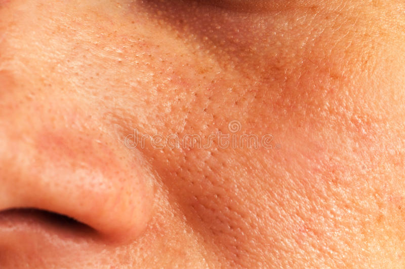Oily skin on the face stock photos