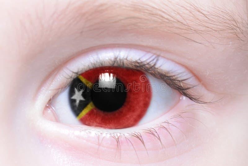 Ojo humano con la bandera nacional de Timor Oriental imagenes de archivo
