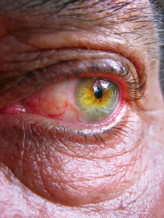Ojo inyectado en sangre cansado fotografía de archivo