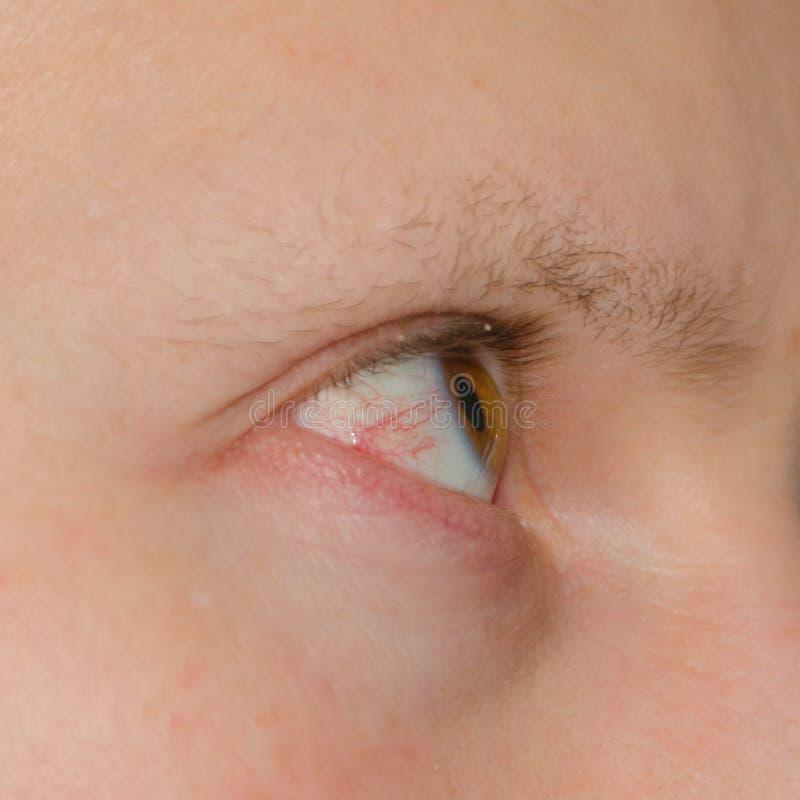 Ojo debajo del rotos vasos sanguíneos