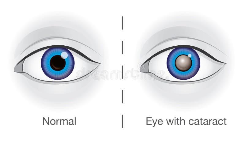 Ojo normal y lente nublados por la catarata ilustración del vector