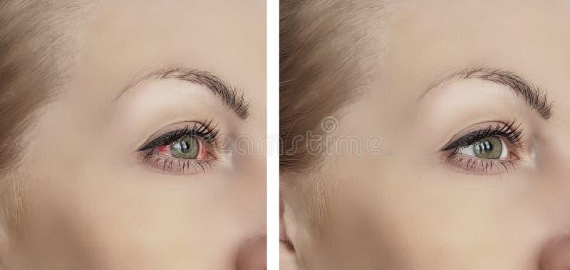 Ojo rojo de la mujer antes después de la oftalmología inyectada en sangre de los procedimientos del problema de la visión del tra fotografía de archivo