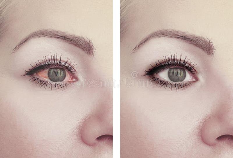 Ojo rojo de la mujer antes después de la oftalmología de los procedimientos del problema de la visión de la amenaza fotos de archivo libres de regalías