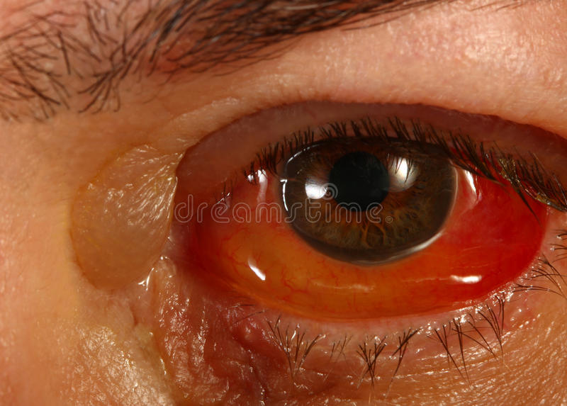 Ojo rojo hinchado después de Cryotheropy fotografía de archivo libre de regalías