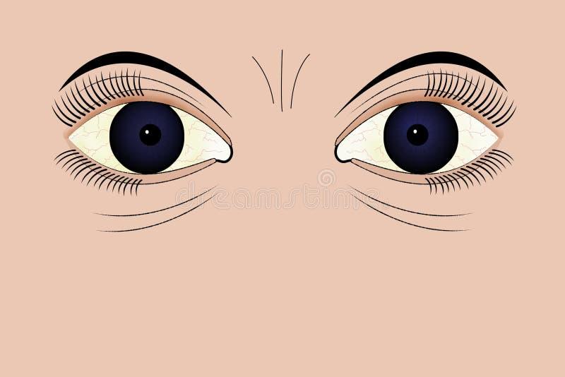 Ojos cansados stock de ilustración