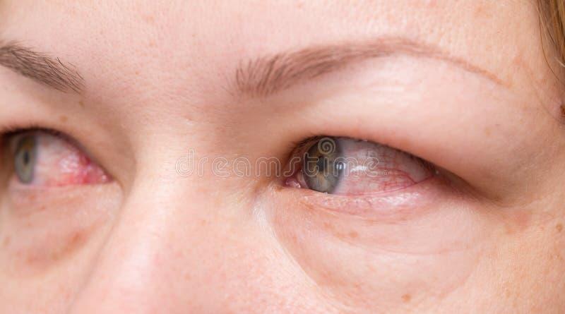 Ojos rojos imagen de archivo libre de regalías
