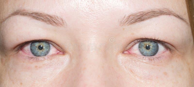 Ojos rojos foto de archivo