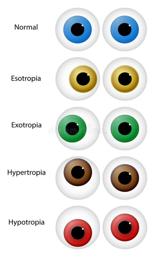 Oko nieład royalty ilustracja