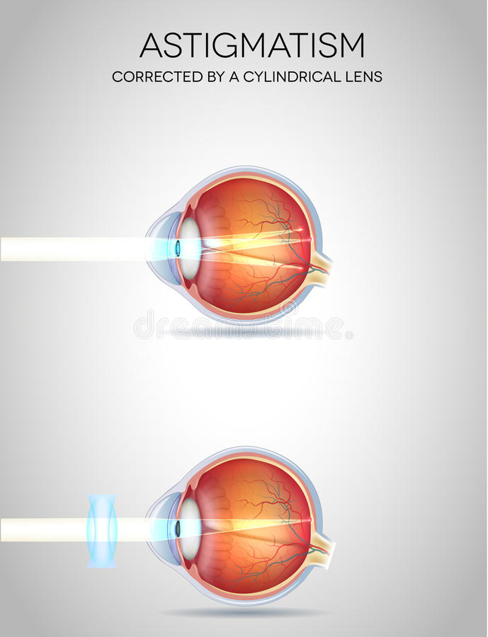 Oko wzroku nieład royalty ilustracja