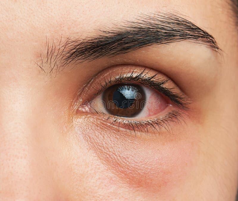 Oko z infekcją fotografia stock