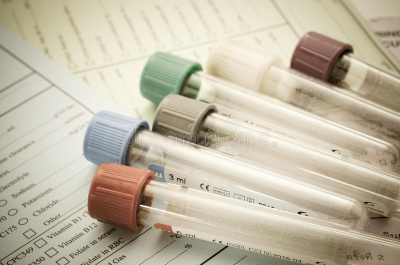The old blood tubes for test on reqest form medical testing royalty free stock images
