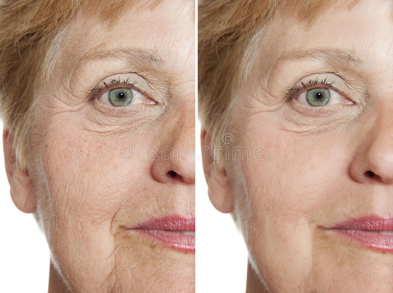 Before - after stock photography