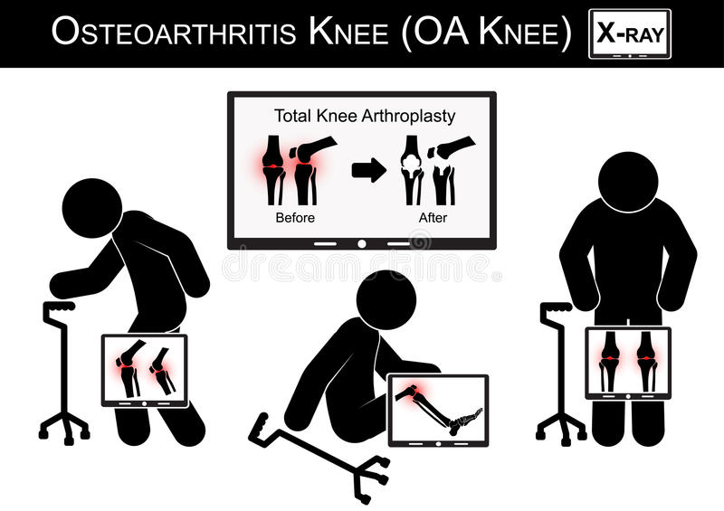 Old man pain at his knee , Monitor show image of Total knee arthroplasty ( before and after surgical treatment ) Osteoarthritis kn royalty free illustration
