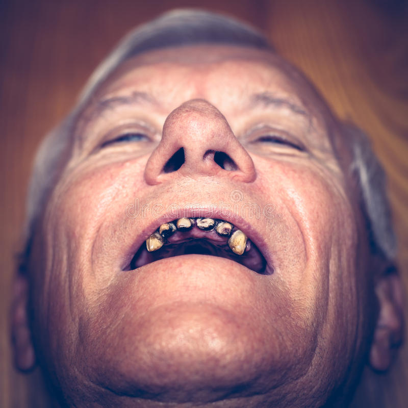 Old man with ugly teeth royalty free stock images