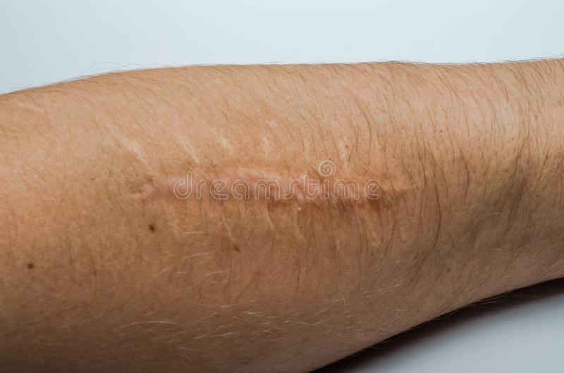 Old scar on the body from surgery stock photos