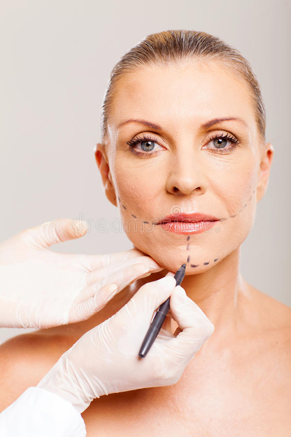Older woman cosmetic surgery