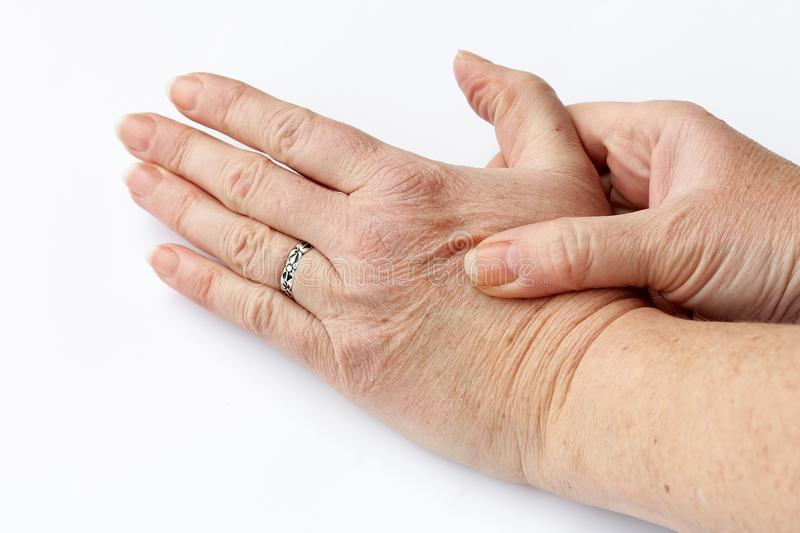 An older woman has pain in her hands stock images