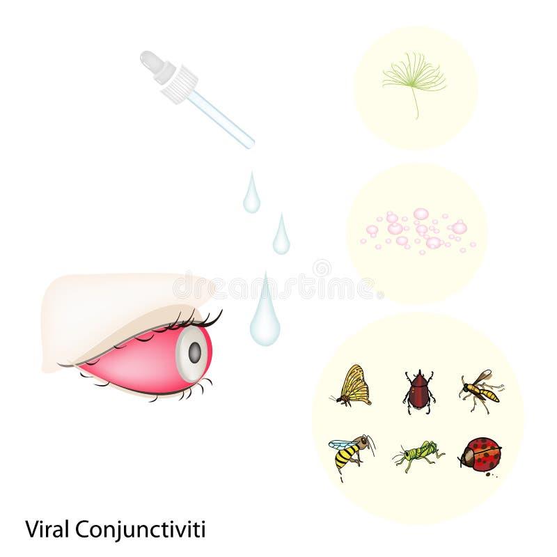 Olho com conjuntivite viral ou o olho cor-de-rosa ilustração stock