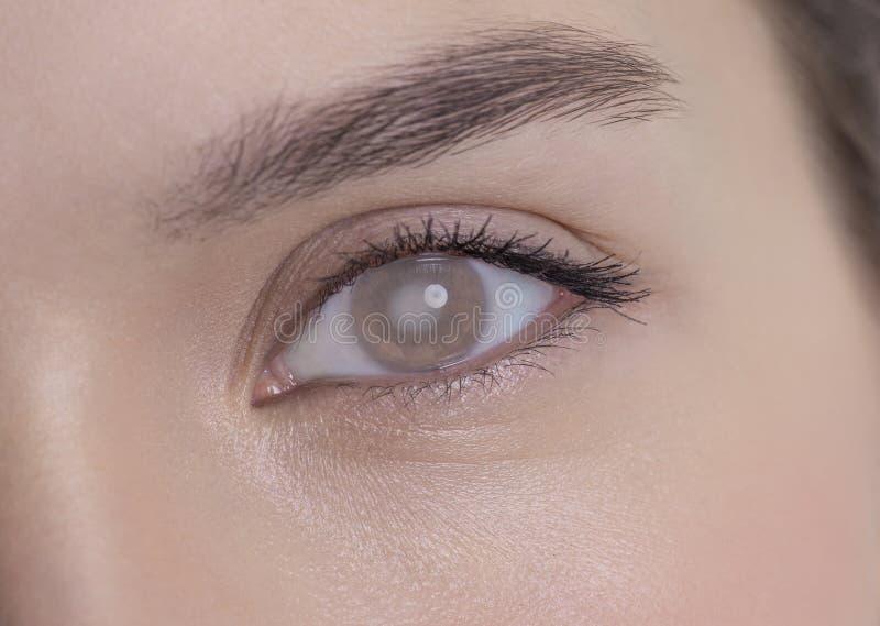 Olho de uma mulher com catarata foto de stock royalty free