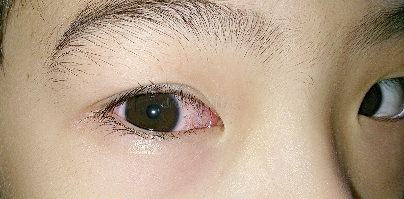 Olho direito cor-de-rosa foto de stock royalty free