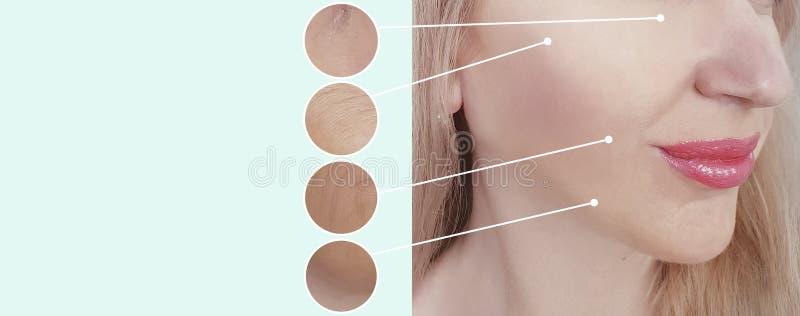 Olhos de uma colagem da remoção do resultado do conceito da diferença da regeneração dos enrugamentos da mulher antes e depois, p foto de stock