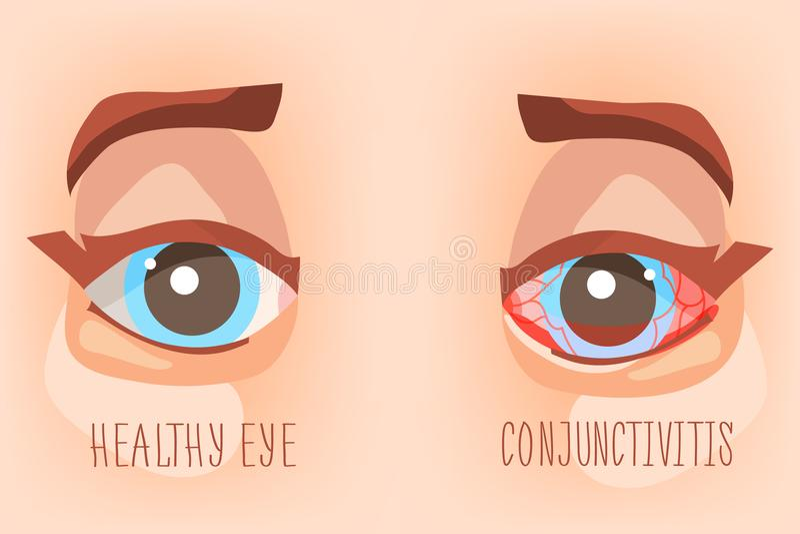Olhos doentes, conjuntivite do olho Ilustração do Eyecare ilustração do vetor