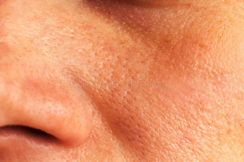 Olieachtige huid op het gezicht stock foto's