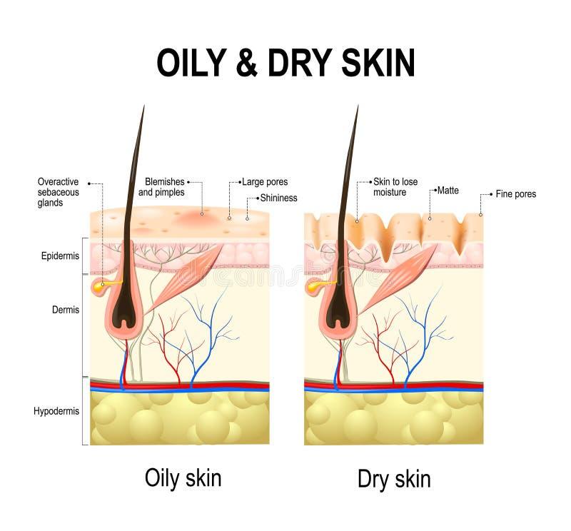 Oljig och torr hud stock illustrationer