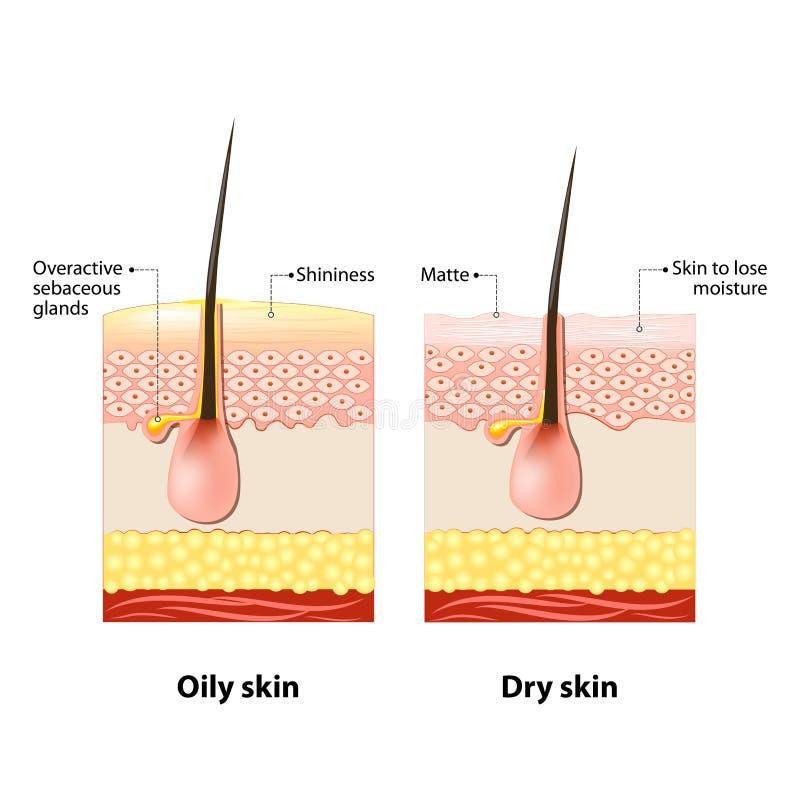 Oljig & torr hud vektor illustrationer