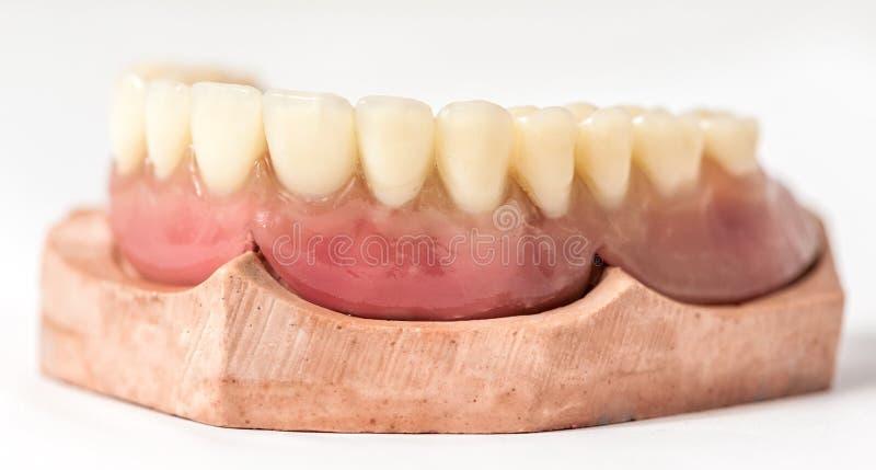 Omedelbar tandprotesUpper royaltyfri fotografi