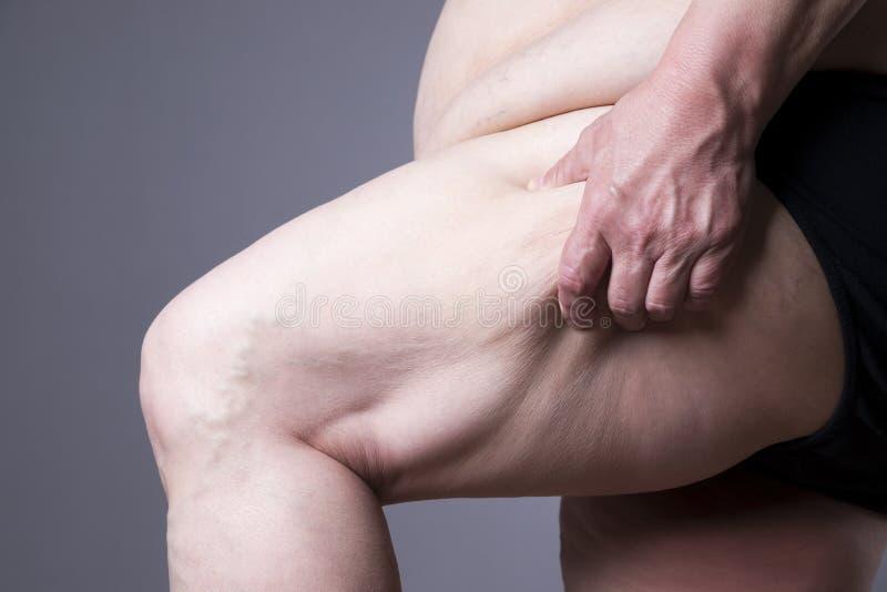 Omhoog sluit het zwaarlijvigheids vrouwelijke lichaam, vette vrouwenbenen royalty-vrije stock foto