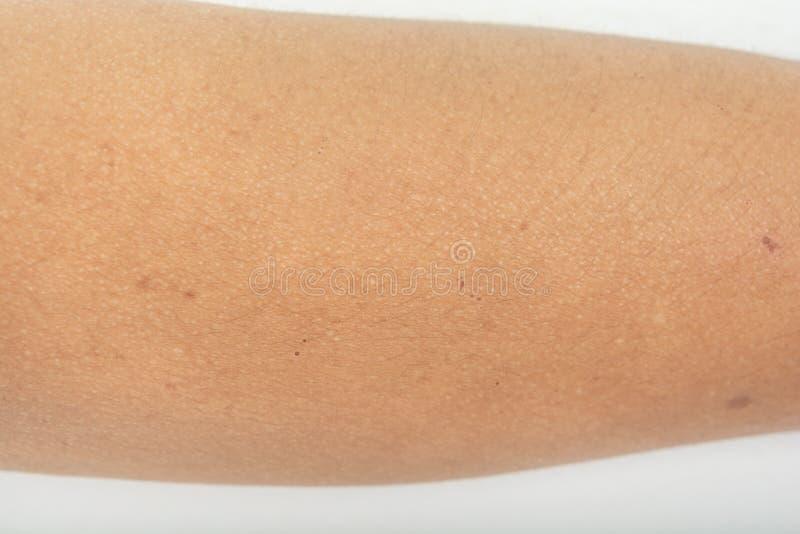 Onbesuisde en allergische reacties, huidproblemen, royalty-vrije stock foto's