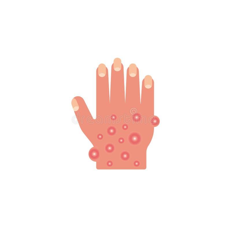 Onbesuisde hand, allergisch reactie vlak pictogram vector illustratie
