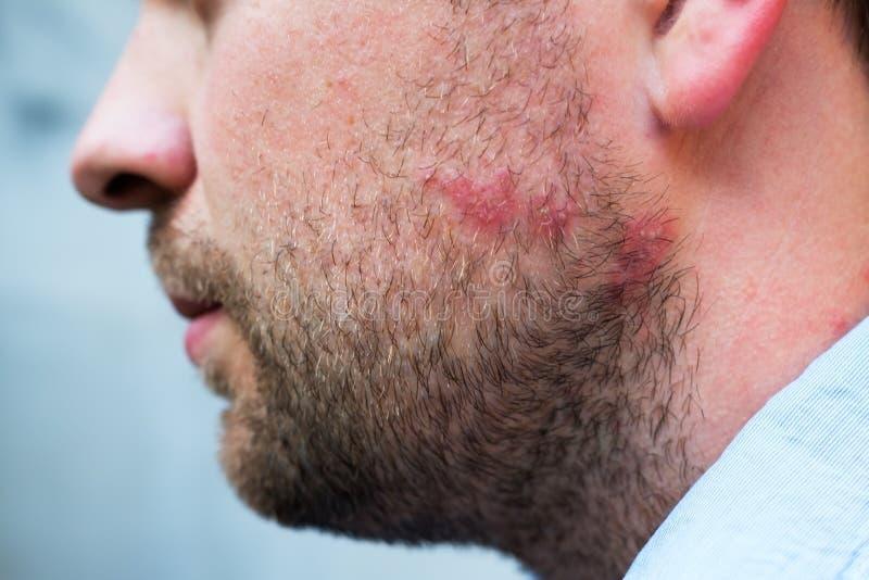Onbesuisde reactie van drug of voedselallergie op gezicht van de Kaukasische mens stock afbeelding
