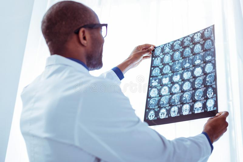 Oncologiste masculin professionnel regardant la photo de rayon X photos stock