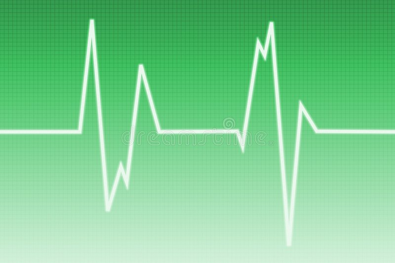Onda Do Cardiogram - Onda De Rádio Imagens de Stock