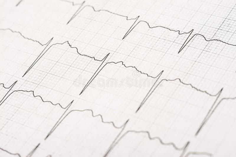 Ondas normales del expediente del electrocardiograma imágenes de archivo libres de regalías