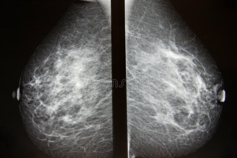 Onderzoek voor borstkanker royalty-vrije stock afbeelding