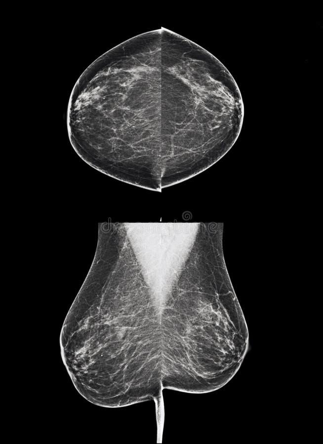 Onderzoek voor borstkanker - mammogram stock fotografie