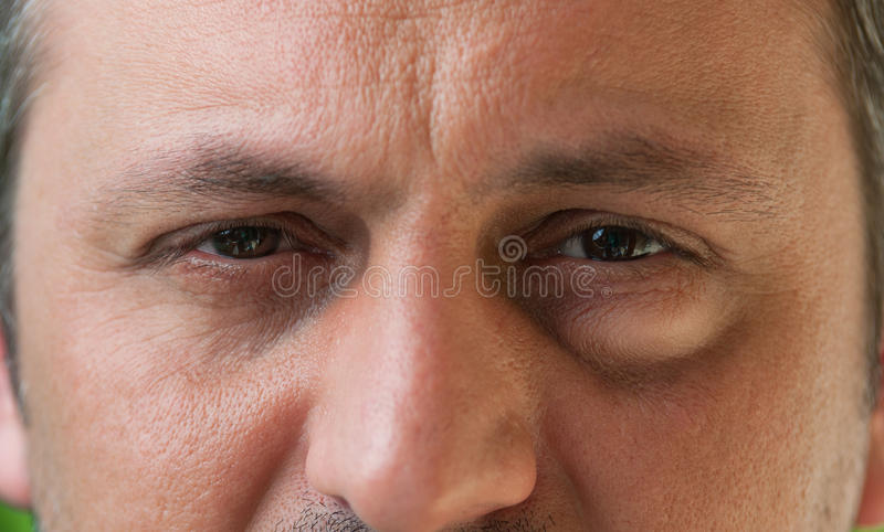 One eye with conjunctivitis stock photos