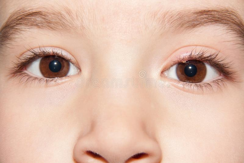 One eye infection stye - upper eyelid inflammation stock photos