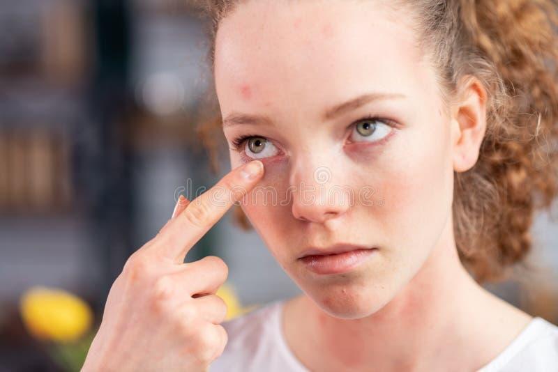 Ongelukkige jonge dame met krullend haar die haar ooglid jeuken stock foto's