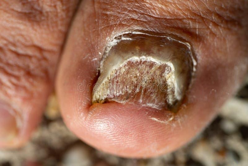 Ongle de pied de Candida Albicans photographie stock libre de droits