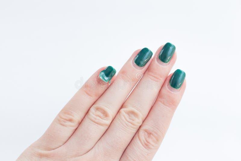Ongle femelle endommagée avec manucure verte Eplucher le polissage de gel avec des ongles Concept de manucure à domicile photo libre de droits