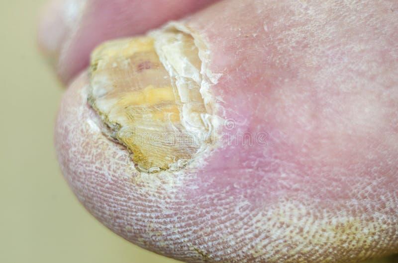 Ongles de pied avec l'infection fongique photos stock