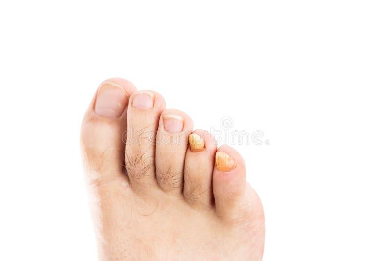 Ongles de pied masculins avec l'infection fongique images libres de droits
