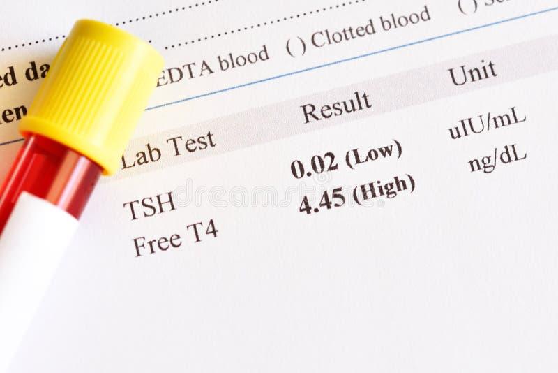 Onormalt resultat för prov för sköldkörtelhormon royaltyfri bild